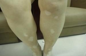腿部白癜风患者应该怎么保养