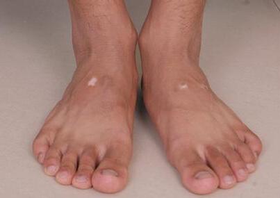 肢端型白癜风会有哪些症状
